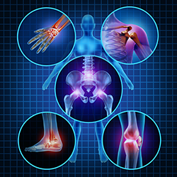 Prolozone - Non-surgical joint repair - image Prolotherapy-250-1 on https://www.iprogressivemed.com