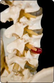 Back Pain and Ruptured Discs