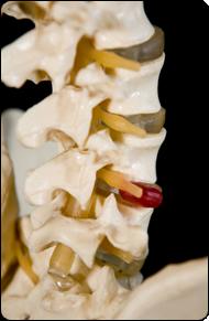 Back Pain and Ruptured Discs - image herniateddisc on https://www.iprogressivemed.com